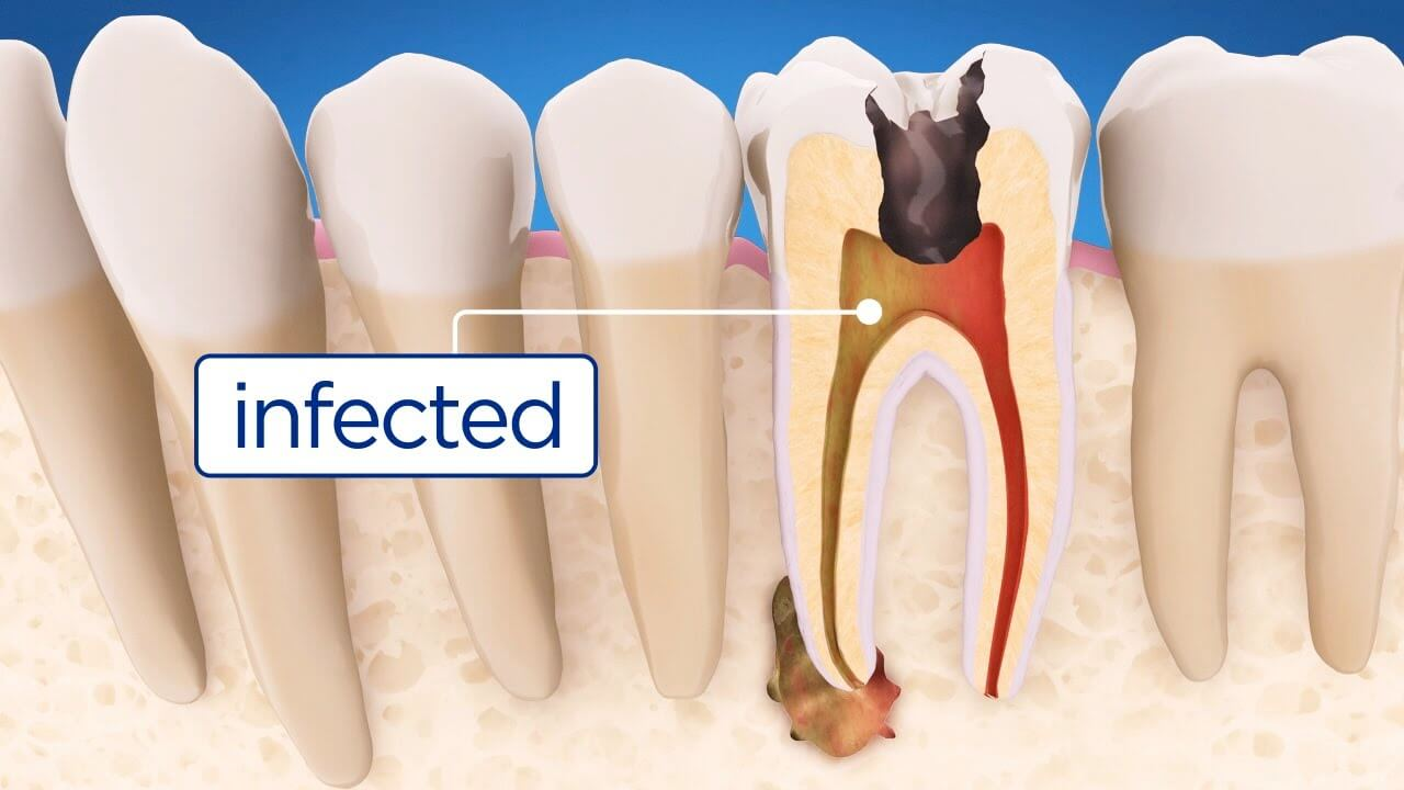 Root-canal-Beverly-Hills
