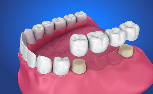 dental-bridge-Beverly-Hills