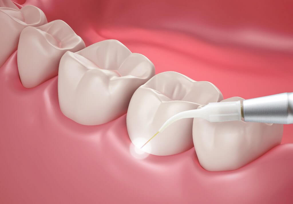 laser-dentistry-Beverly-Hills