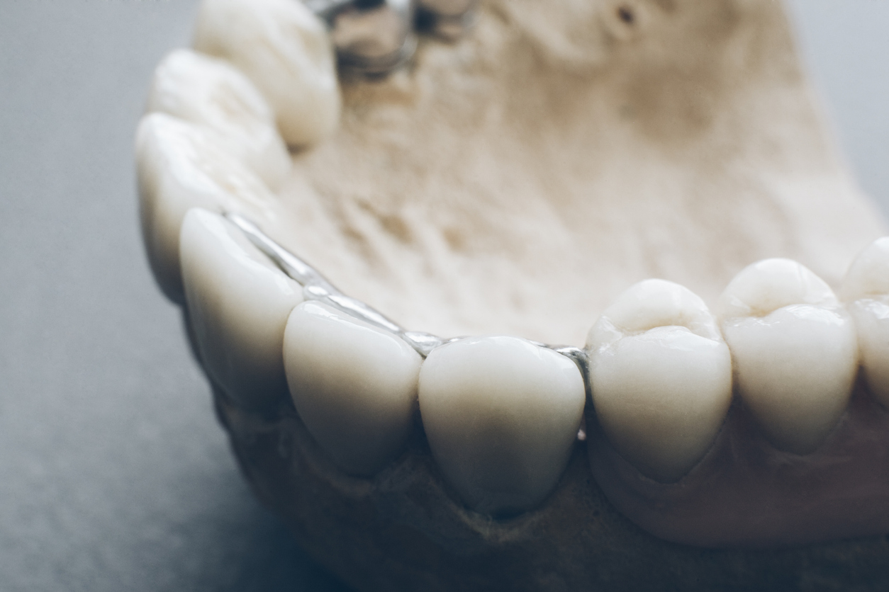 Orthodontics and prosthetics