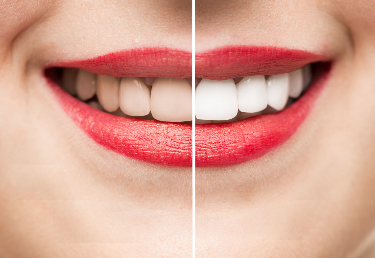 woman smiling with beverly hills teeth whitening before and after